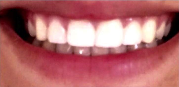 רפואת שיניים אסתטית-אחרי
