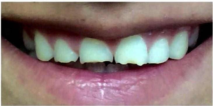 רפואת שיניים אסתטית-לפני