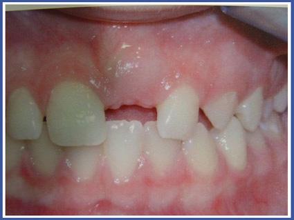 לפני טיפול - השן הכלואה אינה נראית בחלל הפה