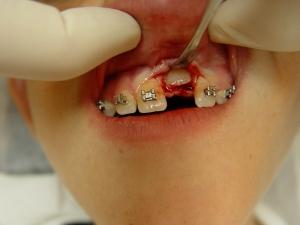1.חשיפה כירורגיתשל השן