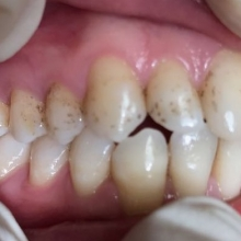 לפני- מטופל הגיע עם BLACK LINE מפושט בכל השיניים