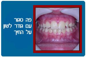ortodontics05b
