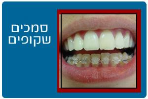 ortodontics10b