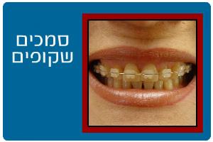 ortodontics11b