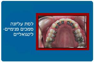 ortodontics12b