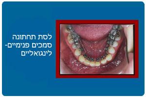 ortodontics13b
