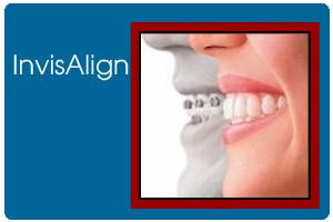 ortodontics15b