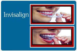 ortodontics16b