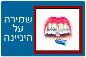 ortodontics18b