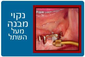 treatment35b