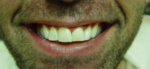 אחרי: החלקת שבר בשן קדמית, הבהרת שיניים ויצירת חיוך יפה יותר