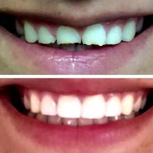 ציפויי שיניים - לפני ואחרי