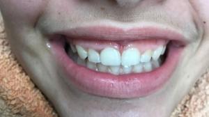 שן שבורה-אחרי