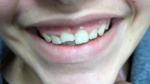שן שבורה-לפני