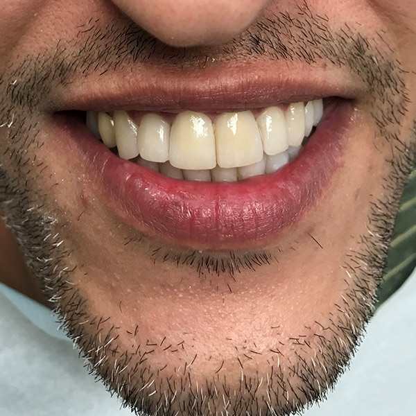 לשנות את צורת השן2