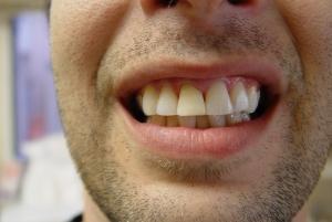 אחרי: החלפת שחזור והבהרת שיניים