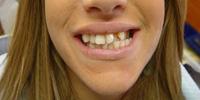 לפני שיניים