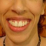 עיצוב החיוך-לפני 0001