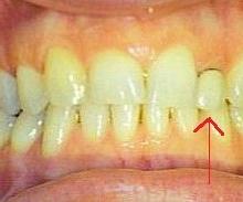 לפני: פציינטית מרוצה מהחיוך אך לא מהשן החותכת הקטנה והקצרה