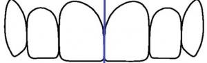 ציר הסימטריה בין שני צדי הלסת
