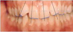 ציר שיניים