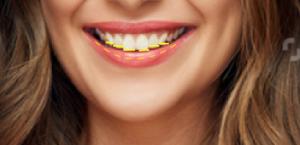 קו חיוך מדורג
