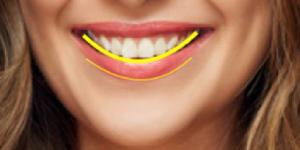 קו חיוך קשתי