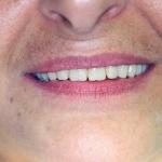 אחרי: ביצוע שיקום עם עיצוב החיוך מחדש, מראה צעיר ומנח חדש של השפתיים