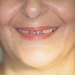 לפני: שיניים קטנות עם מרווחים ומראה מבוגר
