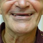 לפני: שיניים קדמיות כלל לא נראות, קו חיוך הפוך, מראה מבגר