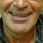 אחרי: עיצוב החיוך מחדש עם פרופורציות חדשות של השיניים וקבלת מראה צעיר ורענן