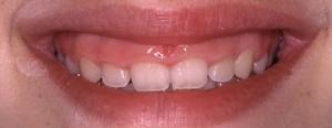 Gummy smile 01